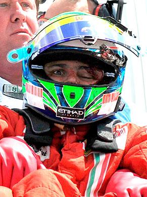 Foto exibida pelo globoesporte.com mostra o estrago feito por peça do carro do Barrichelo no capacete e rosto de Felipe Massa, que passa bem, mas não correrá amanhã